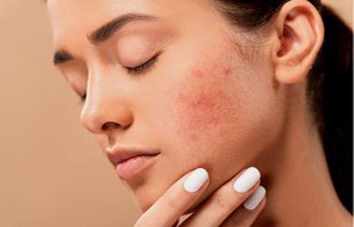 bei trockener Haut und Neurodermitis